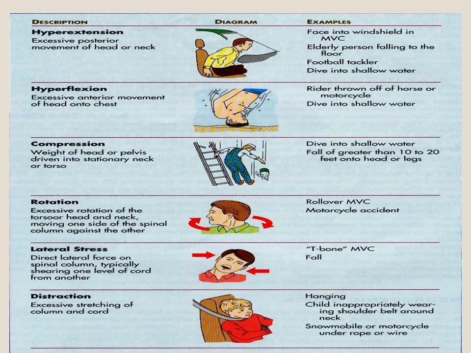 Tedavi ve immobilizasyon Erken spinal immobilizasyonu sağla Hipoksiden koru Hızlı sıvı replasmanı yap.