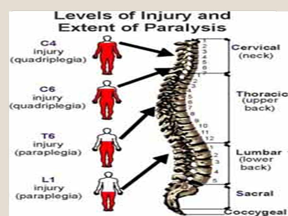 Erişkinlerde spinal yaralanmaların dağılımı Servikal %60 Torakal %8 Torakolomber%20 Lomber %10 Sakral %2 En çok yaralan vertebralar C5-C7 C1-C2 T12-L2