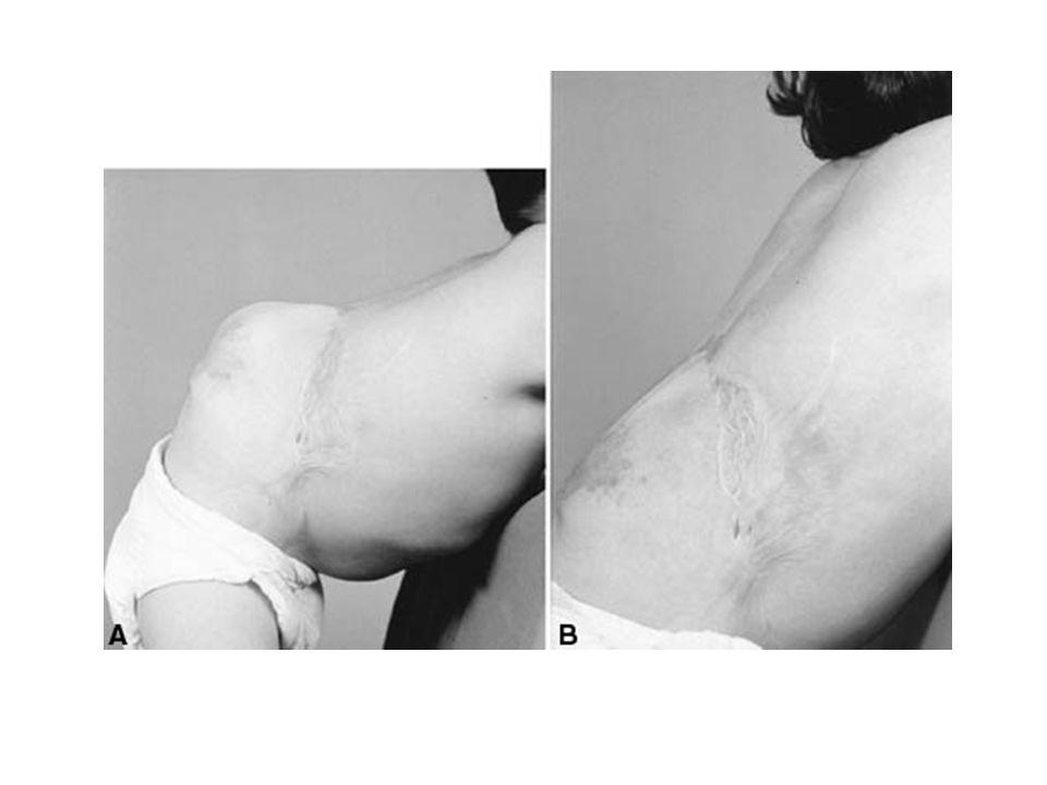 Omurga Muayenesi PALPASYON Kitle ( abse, tümör, paravertebral adele spazmı, meningosel) Isı artışı ( Enfeksiyon, abse )