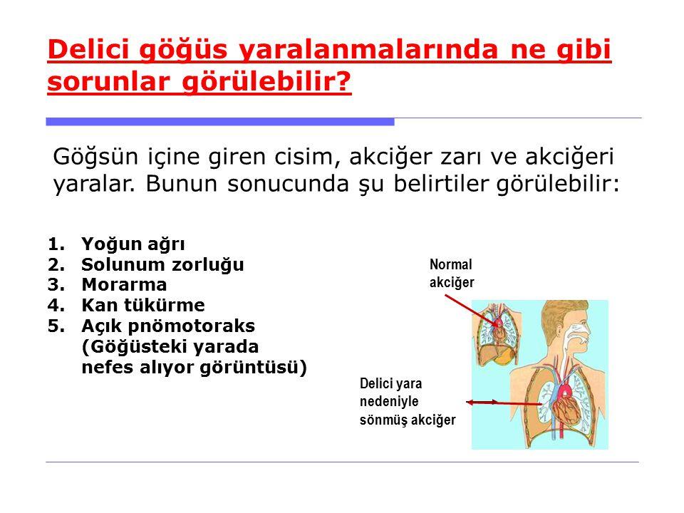 1.Yoğun ağrı 2.Solunum zorluğu 3.Morarma 4.Kan tükürme 5.Açık pnömotoraks (Göğüsteki yarada nefes alıyor görüntüsü) Delici göğüs yaralanmalarında ne gibi sorunlar görülebilir.