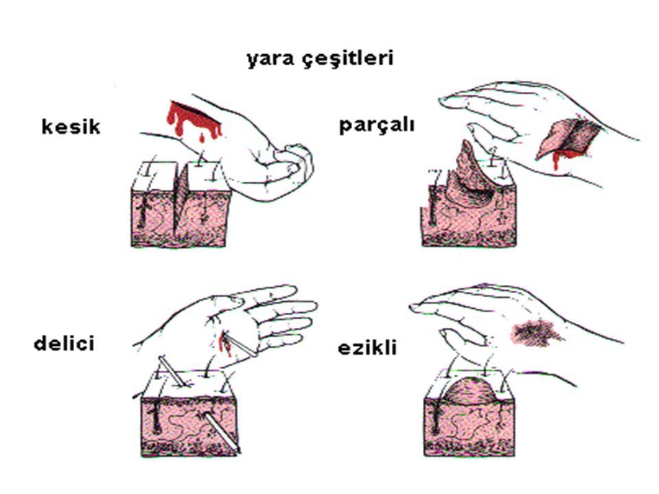 Kafatası yaralanmaları çeşitleri nelerdir.