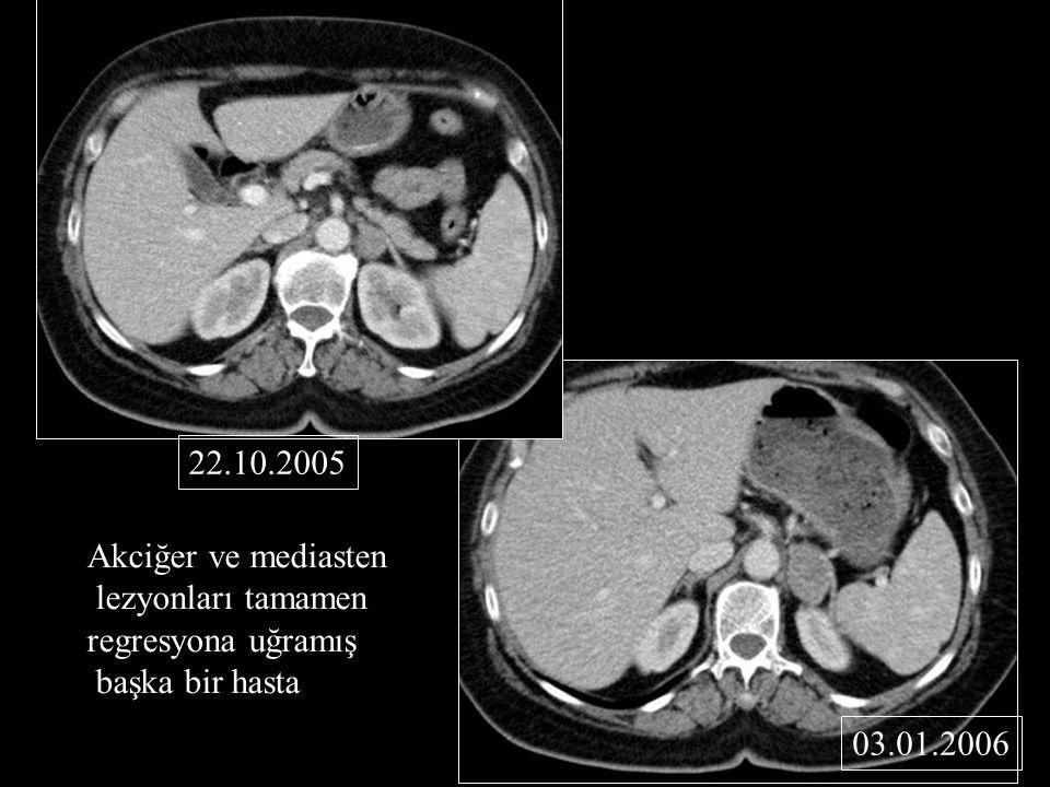 Akciğer ve mediasten lezyonları tamamen regresyona uğramış başka bir hasta 22.10.2005 03.01.2006
