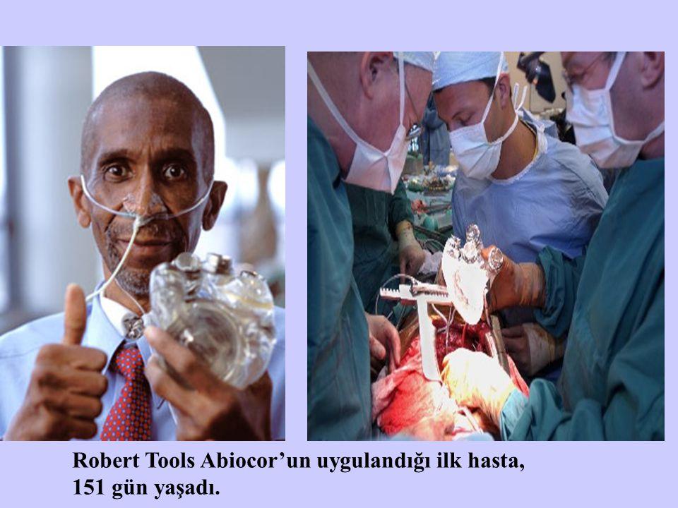 Robert Tools Abiocor'un uygulandığı ilk hasta, 151 gün yaşadı.