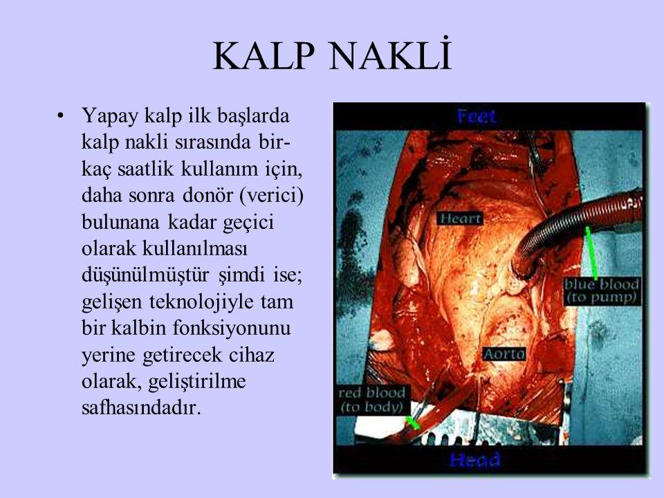 KALP NAKLİ Yapay kalp ilk başlarda kalp nakli sırasında bir- kaç saatlik kullanım için, daha sonra donör (verici) bulunana kadar geçici olarak kullanılması düşünülmüştür şimdi ise; gelişen teknolojiyle tam bir kalbin fonksiyonunu yerine getirecek cihaz olarak, geliştirilme safhasındadır.