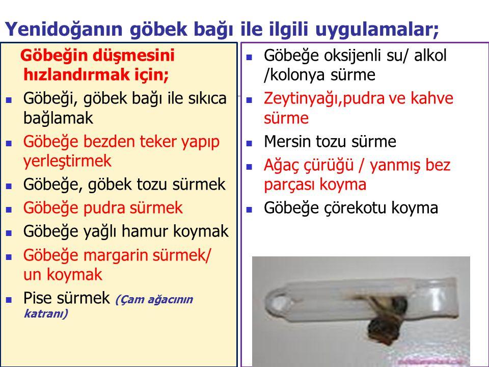 17 Yenidoğanın göbek bağı ile ilgili uygulamalar; Göbeğin düşmesini hızlandırmak için; Göbeği, göbek bağı ile sıkıca bağlamak Göbeğe bezden teker yapı