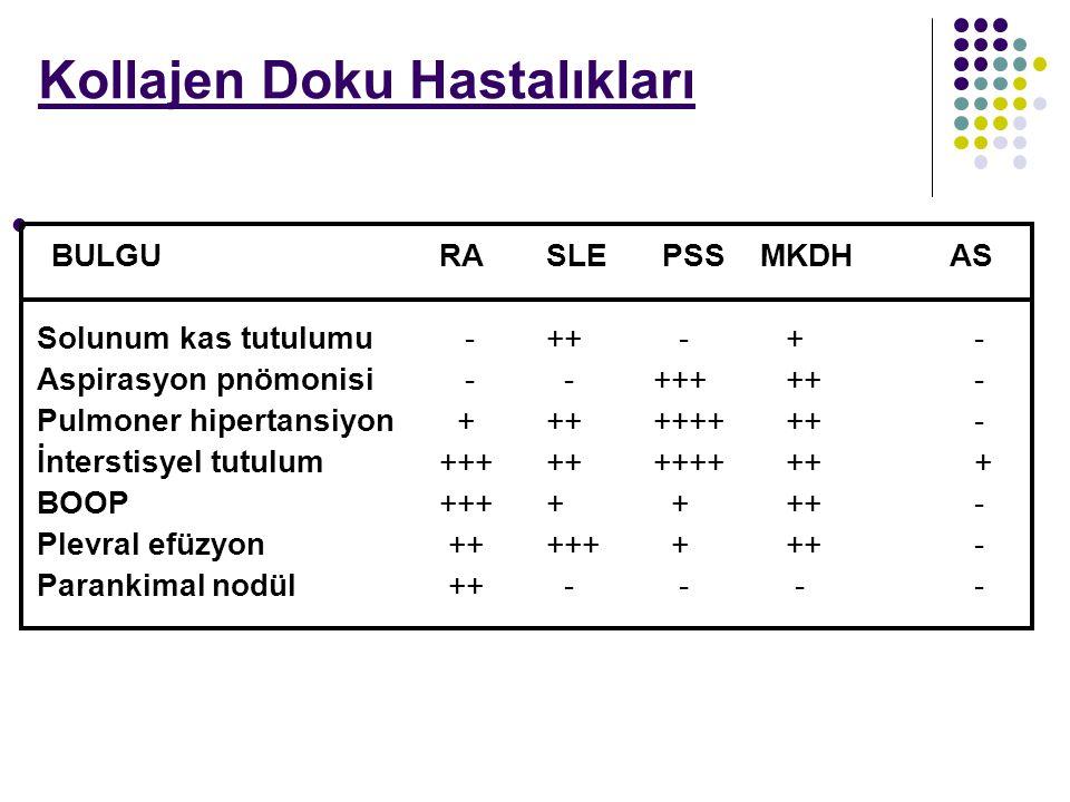 BULGURASLE PSSMKDH AS Solunum kas tutulumu -++ - +- Aspirasyon pnömonisi - -+++ ++- Pulmoner hipertansiyon +++++++ ++- İnterstisyel tutulum+++++++++ +
