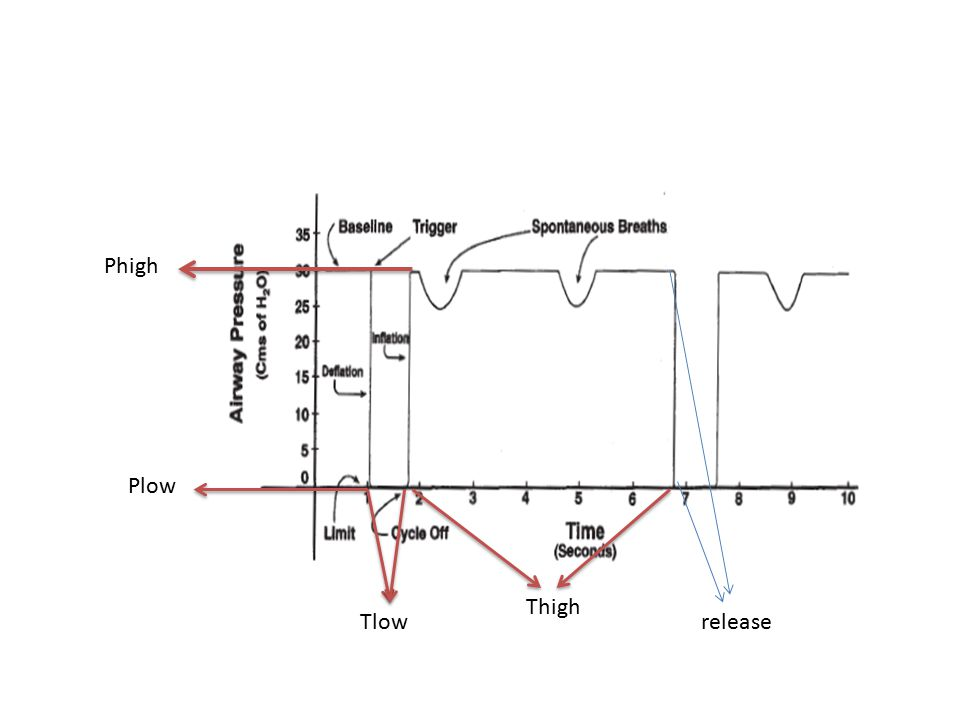 Weaning Drop (Phigh: düş) and Stretch (Thigh: uzat): 2 saatte bir uygulanır, SpO2, nabız, takipne ve solunum işi derekrüitman açısından izlenir.