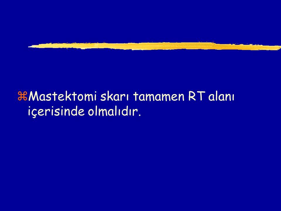 zMastektomi skarı tamamen RT alanı içerisinde olmalıdır.