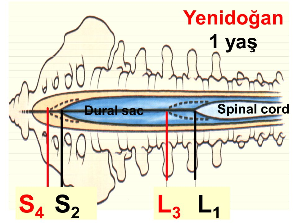 Yenidoğan 1 yaş L1L3L3 L1L1 S4S4 S2S2 Spinal cord Dural sac