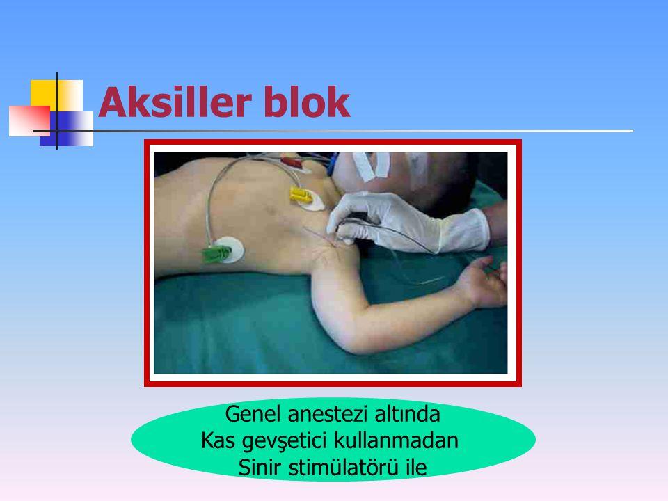 Aksiller blok Genel anestezi altında Kas gevşetici kullanmadan Sinir stimülatörü ile