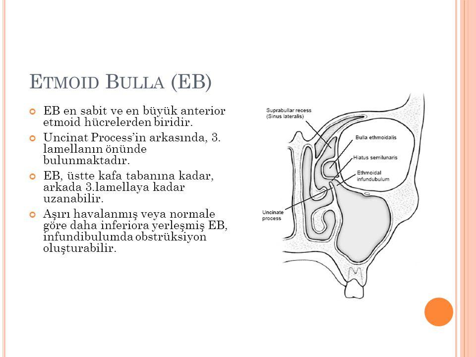 E TMOID B ULLA (EB) EB en sabit ve en büyük anterior etmoid hücrelerden biridir.