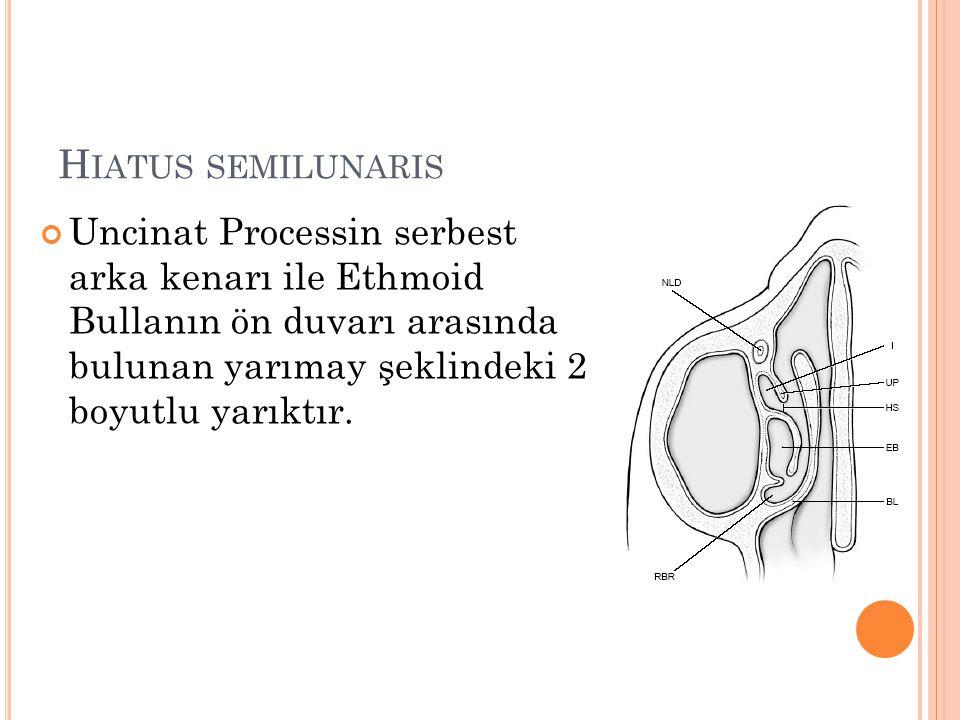 H IATUS SEMILUNARIS Uncinat Processin serbest arka kenarı ile Ethmoid Bullanın ön duvarı arasında bulunan yarımay şeklindeki 2 boyutlu yarıktır.