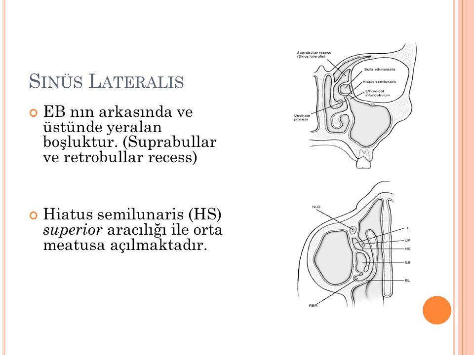 S INÜS L ATERALIS EB nın arkasında ve üstünde yeralan boşluktur. (Suprabullar ve retrobullar recess) Hiatus semilunaris (HS) superior aracılığı ile or