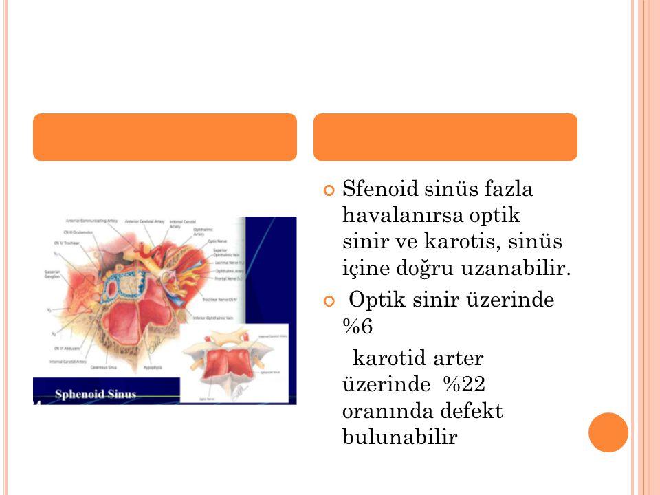 Sfenoid sinüs fazla havalanırsa optik sinir ve karotis, sinüs içine doğru uzanabilir.