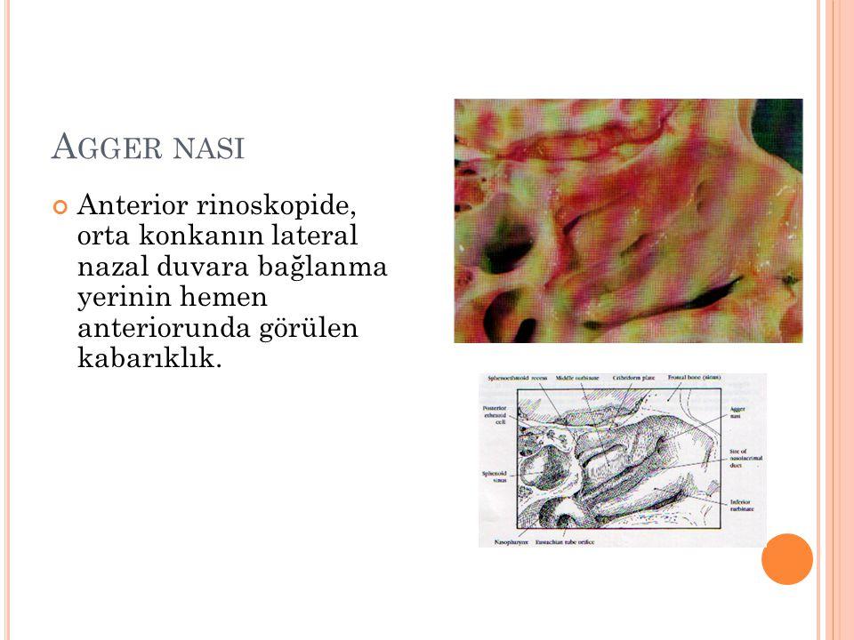 A GGER NASI Anterior rinoskopide, orta konkanın lateral nazal duvara bağlanma yerinin hemen anteriorunda görülen kabarıklık.