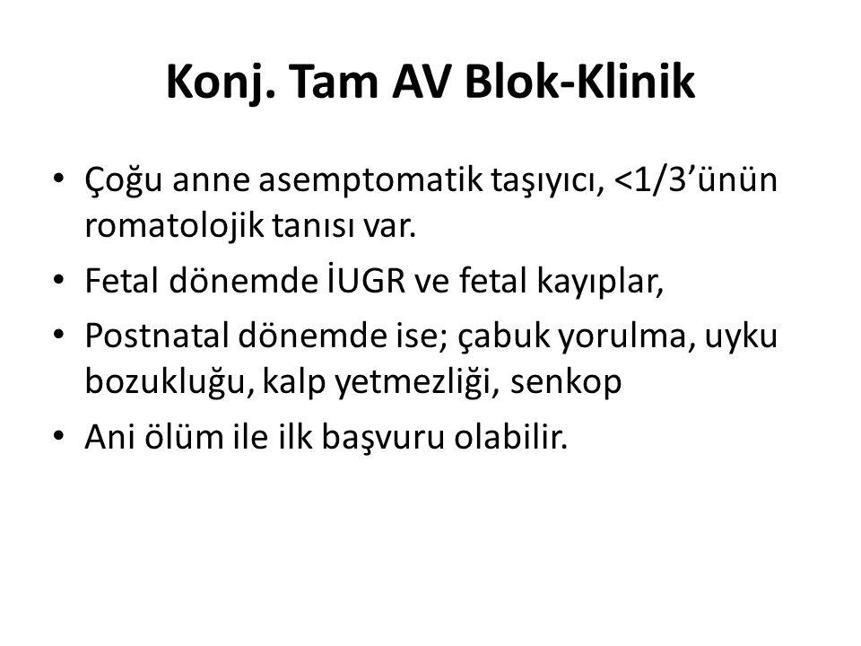 Konj. Tam AV Blok-Klinik Çoğu anne asemptomatik taşıyıcı, <1/3'ünün romatolojik tanısı var.