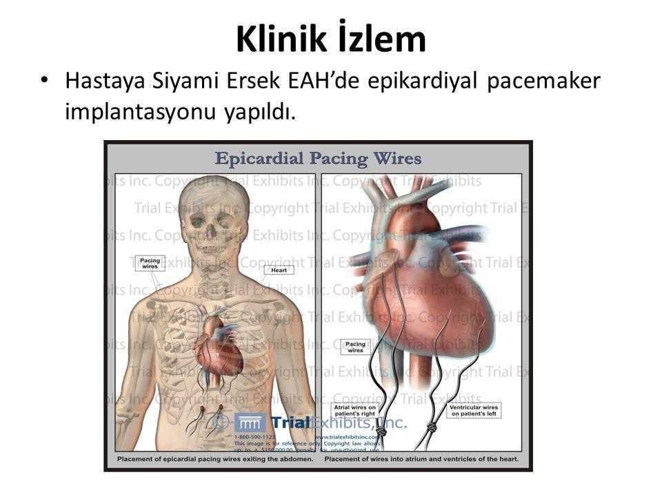 Klinik İzlem Hastaya Siyami Ersek EAH'de epikardiyal pacemaker implantasyonu yapıldı.