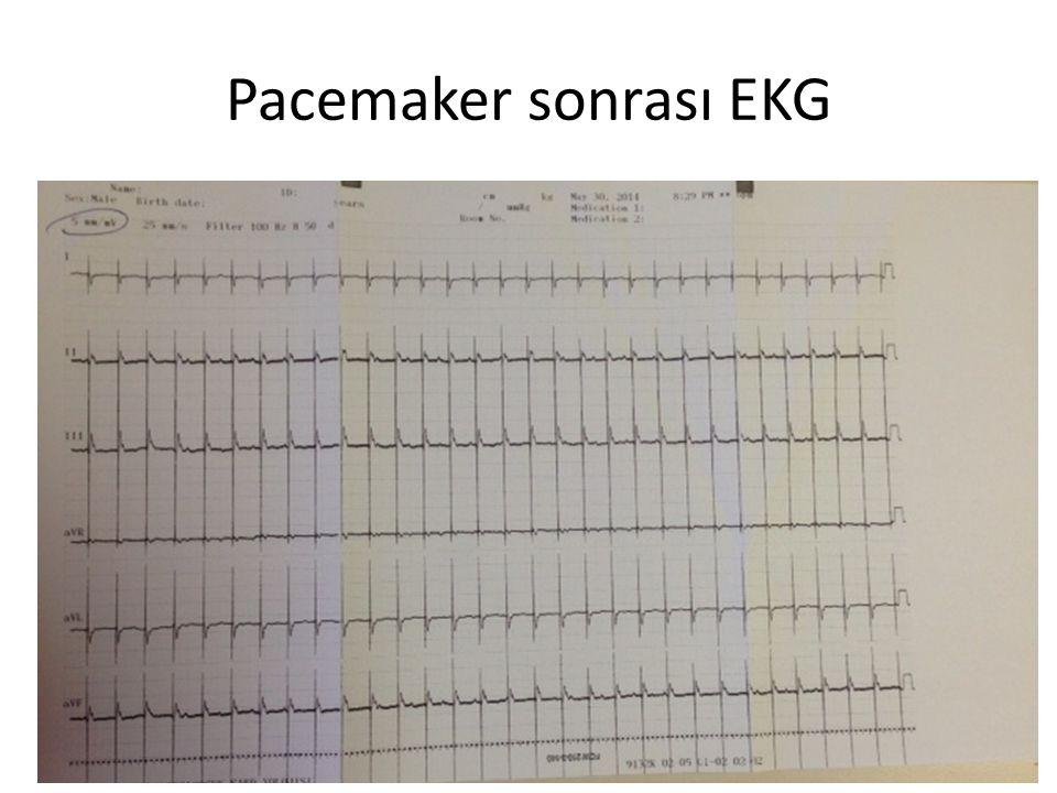 Pacemaker sonrası EKG