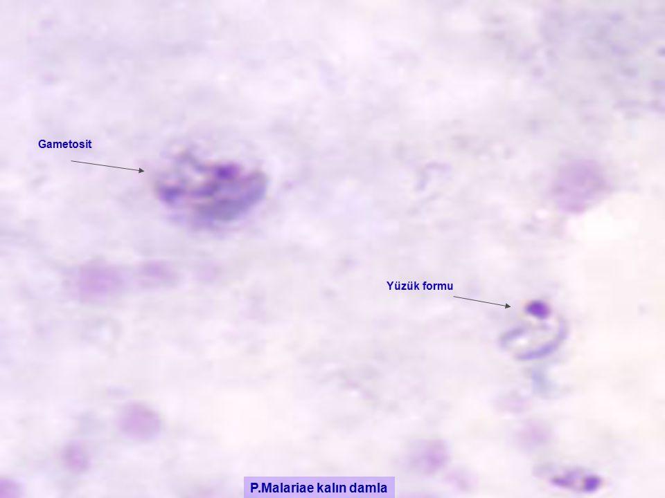 P.Malariae kalın damla Yüzük formu Gametosit