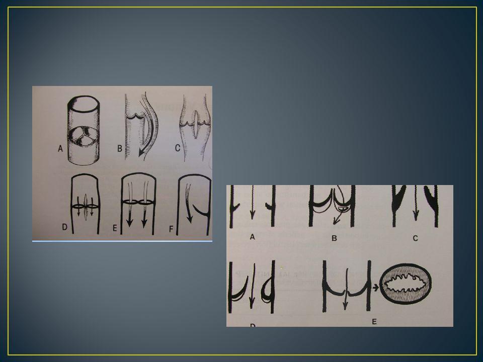 Asendan venografi venöz sistemlerin açıklığını gösterir, venöz anatomiyi tam olarak ortaya koyar.