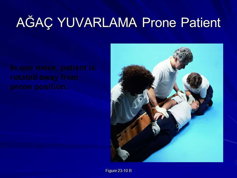 Figure 23-10 B AĞAÇ YUVARLAMA Prone Patient In one move, patient is rotated away from prone position.