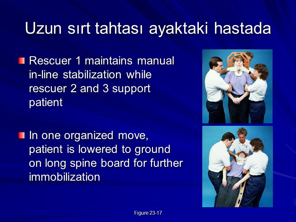 Figure 23-17 Uzun sırt tahtası ayaktaki hastada Rescuer 1 maintains manual in-line stabilization while rescuer 2 and 3 support patient In one organize