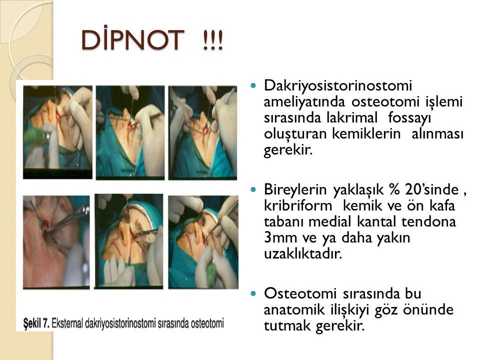 D İ PNOT !!! Dakriyosistorinostomi ameliyatında osteotomi işlemi sırasında lakrimal fossayı oluşturan kemiklerin alınması gerekir. Bireylerin yaklaşık