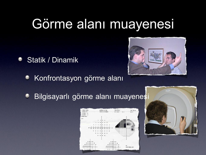 Görme alanı muayenesi Statik / Dinamik Konfrontasyon görme alanı Bilgisayarlı görme alanı muayenesi