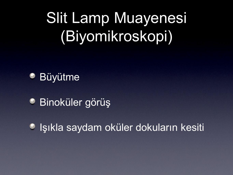 Slit Lamp Muayenesi (Biyomikroskopi) Büyütme Binoküler görüş Işıkla saydam oküler dokuların kesiti