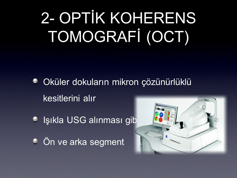 2- OPTİK KOHERENS TOMOGRAFİ (OCT) Oküler dokuların mikron çözünürlüklü kesitlerini alır Işıkla USG alınması gibi Ön ve arka segment