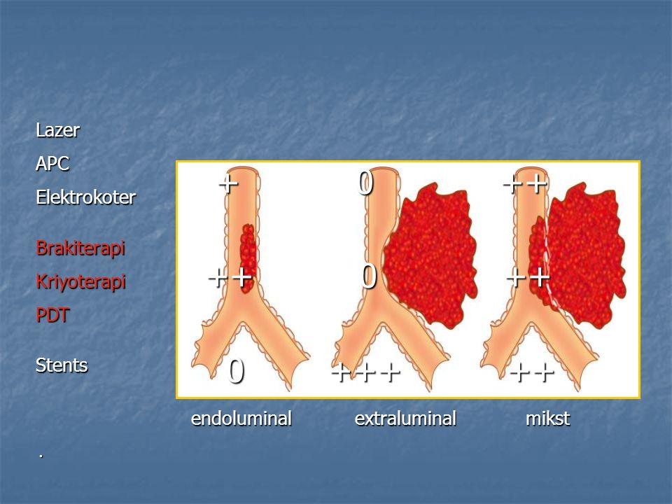 . Lazer APCElektrokoter Brakiterapi Kriyoterapi PDTStents + 0 ++ + 0 ++ ++ 0 ++ ++ 0 ++ 0 +++ ++ 0 +++ ++ endoluminal extraluminal mikst endoluminal e