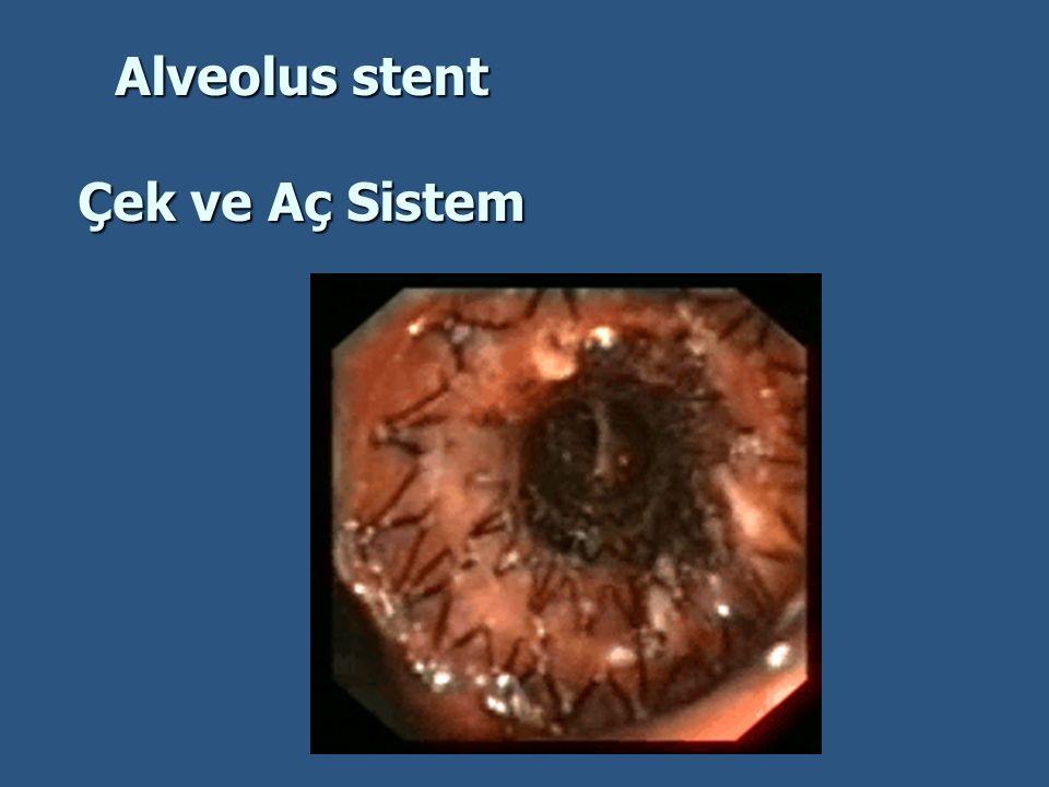 Alveolus stent Çek ve Aç Sistem