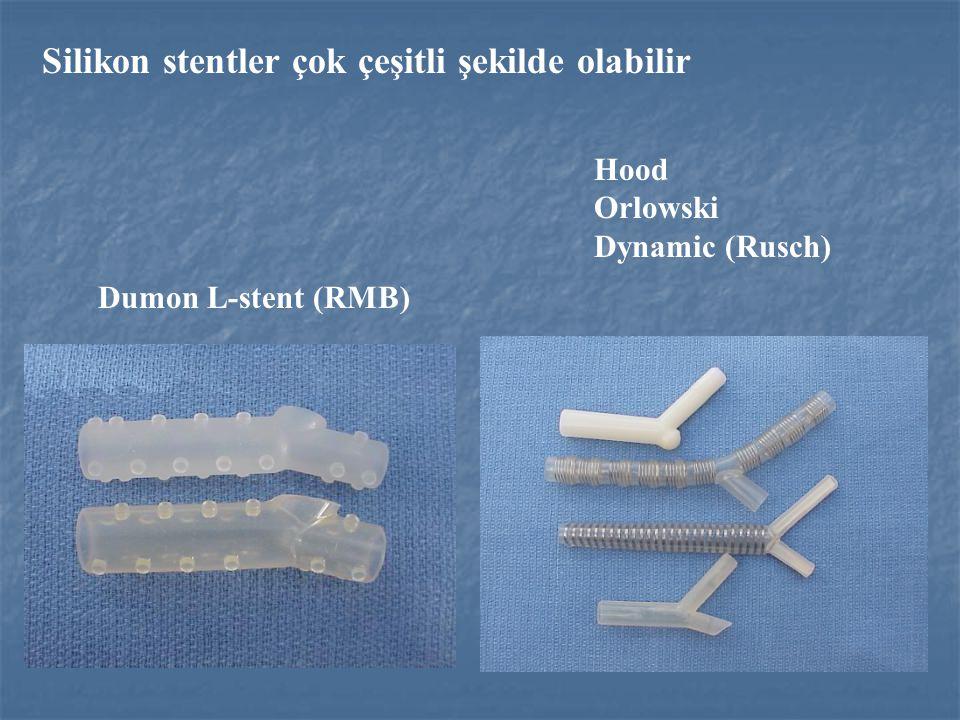 Silikon stentler çok çeşitli şekilde olabilir Dumon L-stent (RMB) Hood Orlowski Dynamic (Rusch)