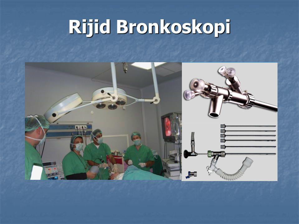 Rijid Bronkoskopi