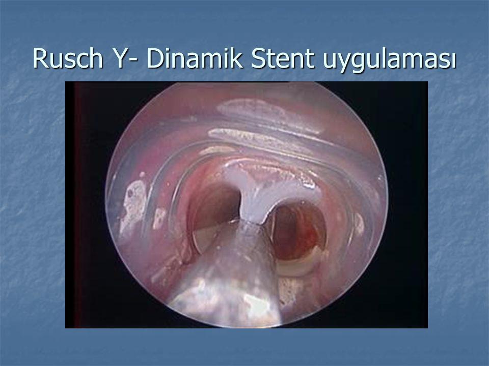 Rusch Y- Dinamik Stent uygulaması