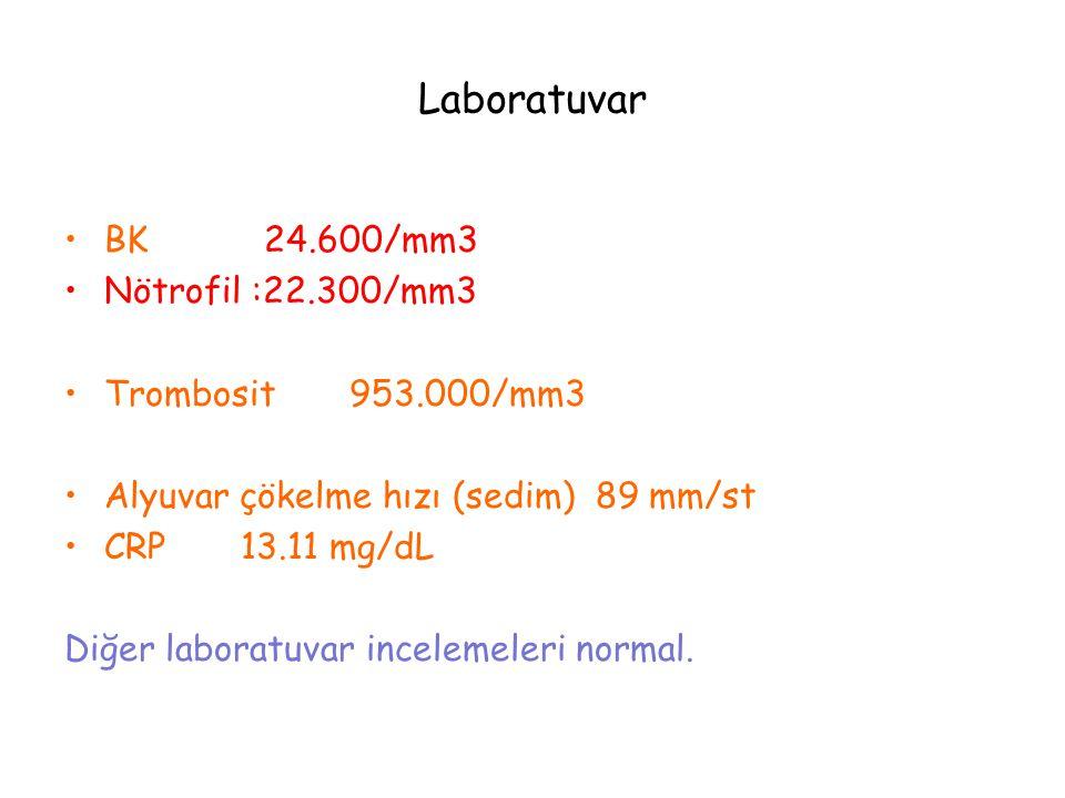 Laboratuvar BK 24.600/mm3 Nötrofil :22.300/mm3 Trombosit 953.000/mm3 Alyuvar çökelme hızı (sedim) 89 mm/st CRP 13.11 mg/dL Diğer laboratuvar incelemel