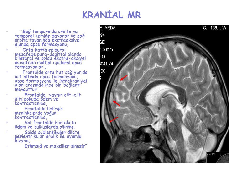 KRANİAL MR ''Sağ temporalde orbita ve temporal kemiğe dayanan ve sağ orbita tavanında ekstraaksiyel alanda apse formasyonu, Orta hatta epidural mesafe