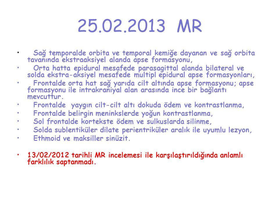 25.02.2013 MR Sağ temporalde orbita ve temporal kemiğe dayanan ve sağ orbita tavanında ekstraaksiyel alanda apse formasyonu, Orta hatta epidural mesaf