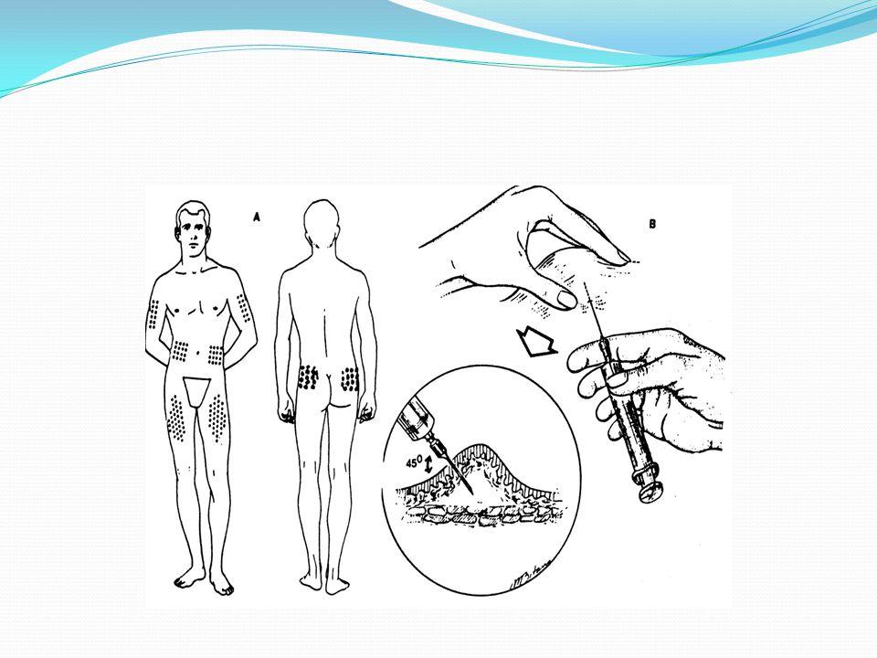 İntradermal (Deri İçi) Enjeksiyon İntradermal enjeksiyon, tam epidermisin altına uygulanır.