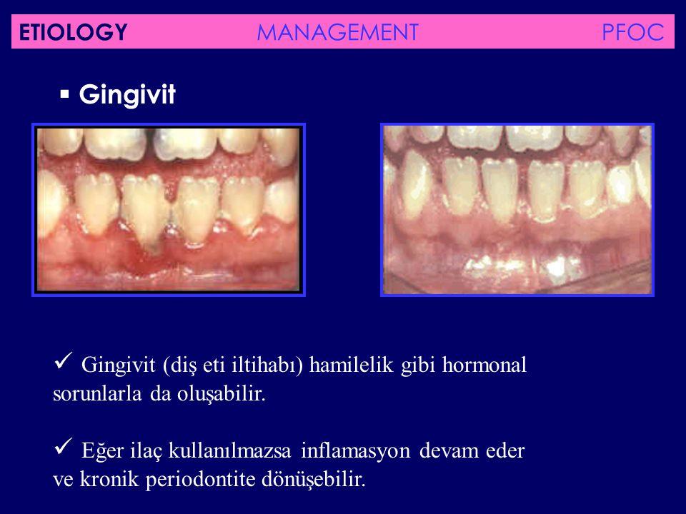 Gingivit Gingivit (diş eti iltihabı) hamilelik gibi hormonal sorunlarla da oluşabilir. Eğer ilaç kullanılmazsa inflamasyon devam eder ve kronik peri
