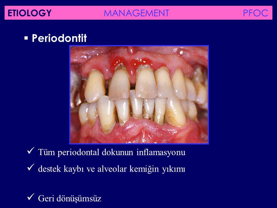  Periodontit Tüm periodontal dokunun inflamasyonu destek kaybı ve alveolar kemiğin yıkımı Geri dönüşümsüz ETIOLOGY MANAGEMENT PFOC
