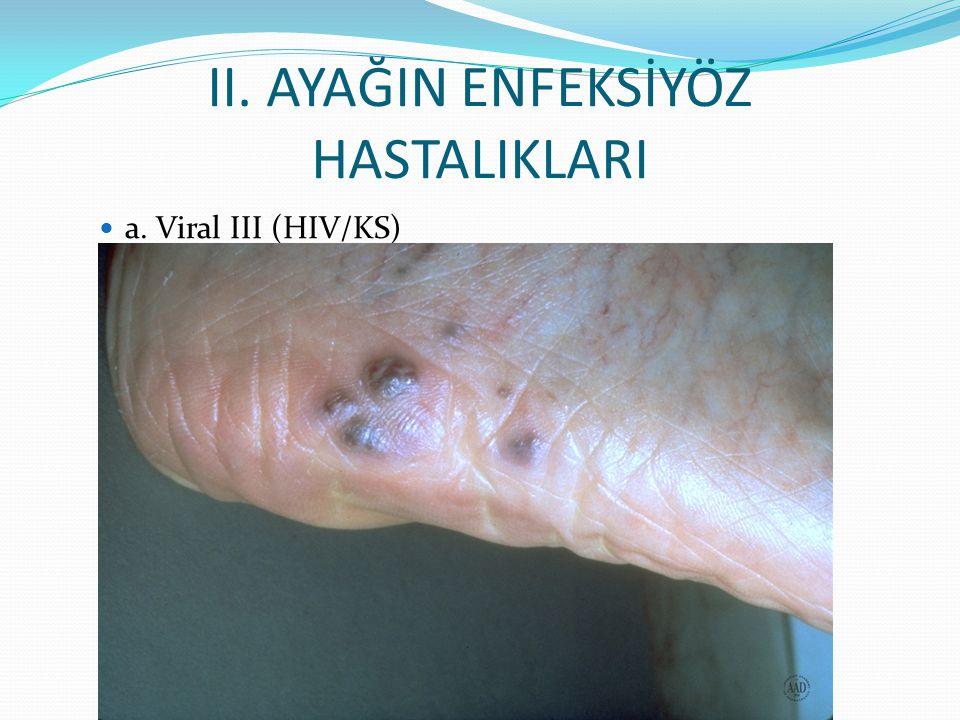 II. AYAĞIN ENFEKSİYÖZ HASTALIKLARI a. Viral III (HIV/KS)