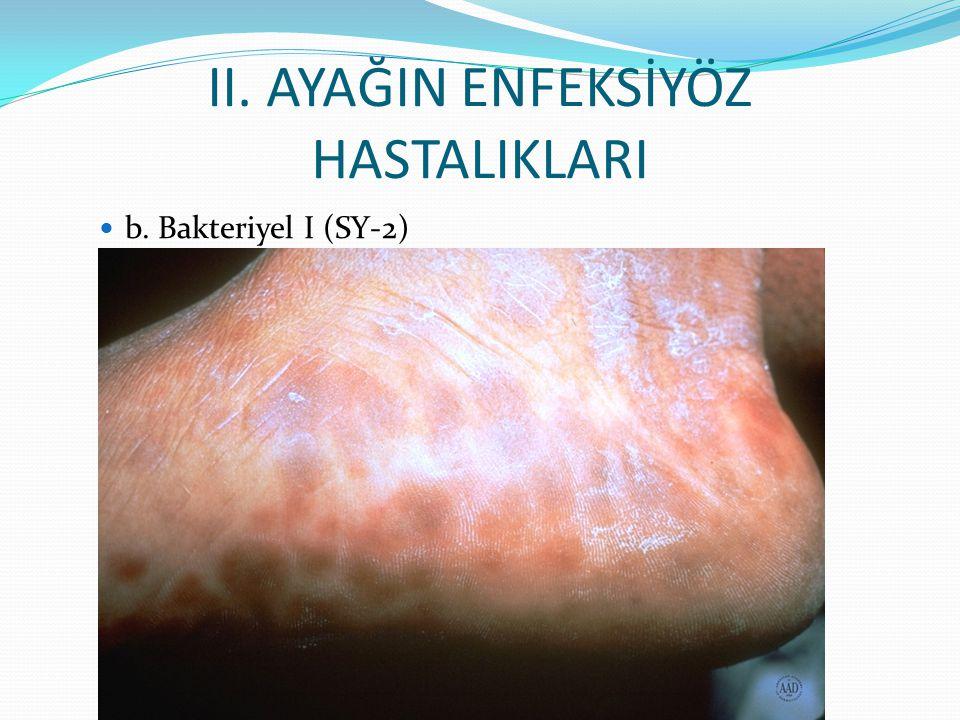 II. AYAĞIN ENFEKSİYÖZ HASTALIKLARI b. Bakteriyel I (SY-2)