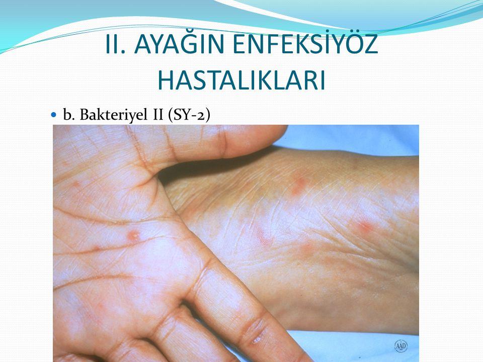 II. AYAĞIN ENFEKSİYÖZ HASTALIKLARI b. Bakteriyel II (SY-2)