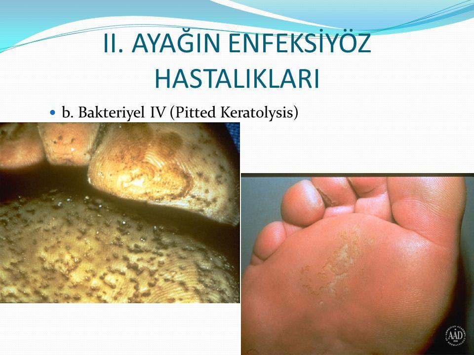 II. AYAĞIN ENFEKSİYÖZ HASTALIKLARI b. Bakteriyel IV (Pitted Keratolysis)