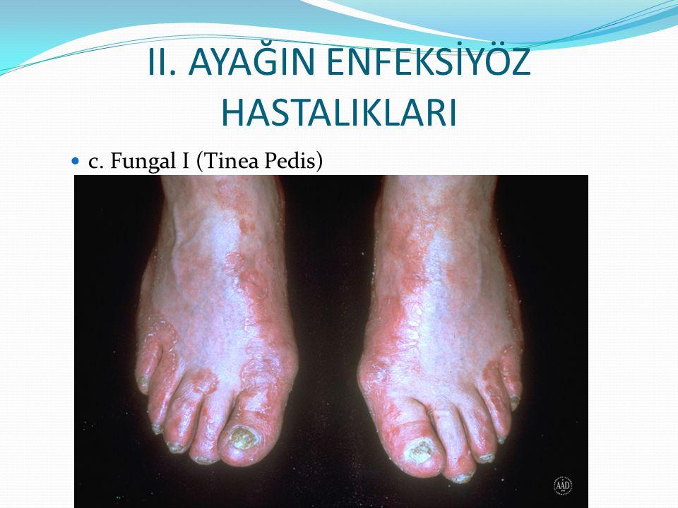II. AYAĞIN ENFEKSİYÖZ HASTALIKLARI c. Fungal I (Tinea Pedis)