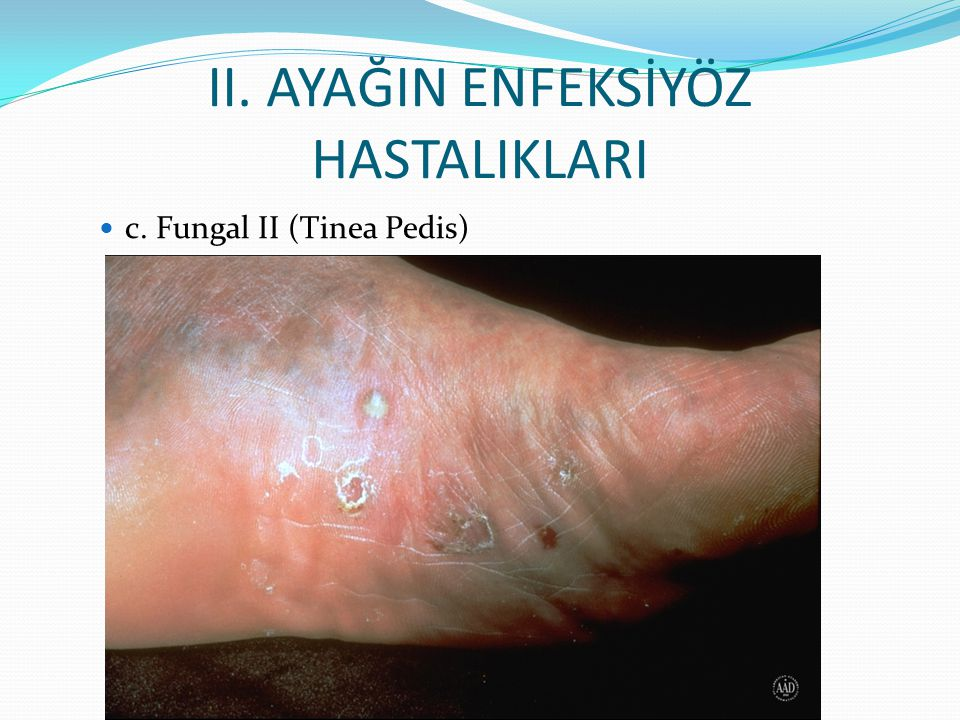 II. AYAĞIN ENFEKSİYÖZ HASTALIKLARI c. Fungal II (Tinea Pedis)