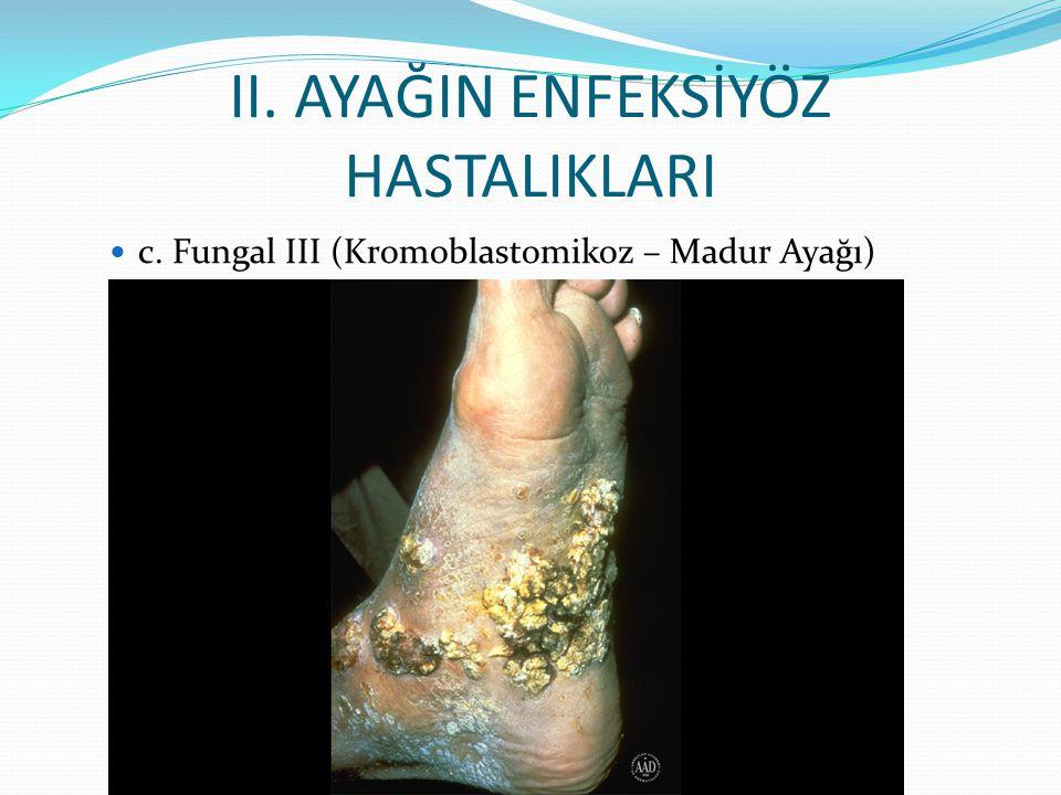 II. AYAĞIN ENFEKSİYÖZ HASTALIKLARI c. Fungal III (Kromoblastomikoz – Madur Ayağı)