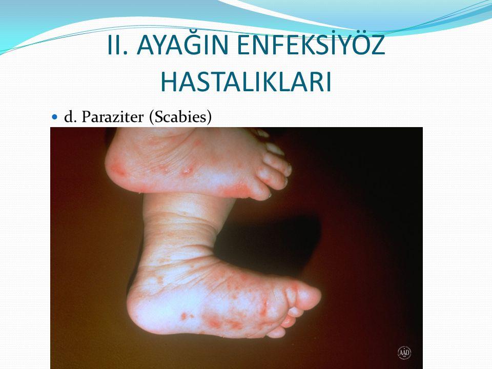 II. AYAĞIN ENFEKSİYÖZ HASTALIKLARI d. Paraziter (Scabies)