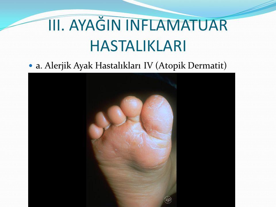 III. AYAĞIN INFLAMATUAR HASTALIKLARI a. Alerjik Ayak Hastalıkları IV (Atopik Dermatit)
